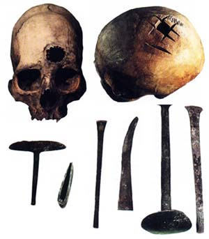 Трепанированные черепа и хирургические инструменты