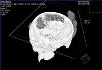 Самый древний мозг найден в Британии